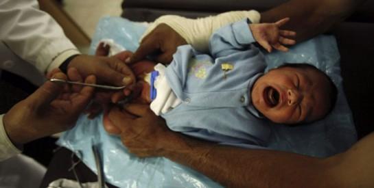La circoncision : tout savoir sur la circoncision du bébé